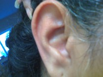 Violence Against Women: Right Ear Front View