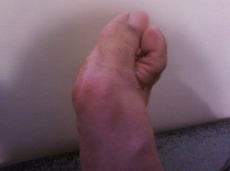 Violence Against Women: Right Foot Injury Hallux Valgus, Pigeon Toe Side View