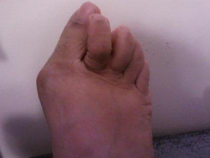 Gardenia Hung's Right Foot Injury: Hallux Valgus, Pigeon Toe